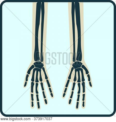 Arm Hand Bone, X-ray Concept Icon, Roentgen Human Body Image Isolated On White, Flat Vector Illustra