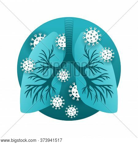 Sars (atypical Pneumonia) Illustration - Human Lungs Infected By Viruses (coronavirus) Or Dangerous