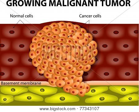 Cancer cells in a growing malignant tumor. malignant neoplasm. metastasis poster