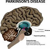 Parkinson's Disease. Cross-section of the human brain showing the substantia nigra, the region affected by Parkinson's disease. Illustration shows Neuronal Pathways that Degenerate in Parkinson's Disease. poster