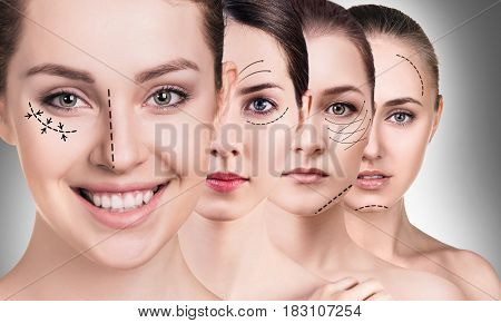 Woman's faces with lifting arrows over gray background. Plastic surgery concept.