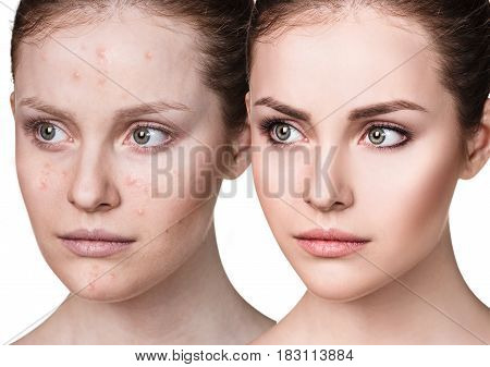 Comparison portrait of young girl with acne before and after treatment and make-up.