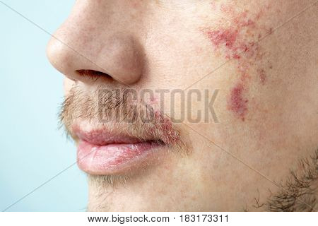 Young man with birthmarks on light background, closeup