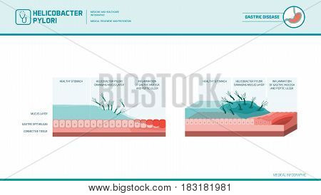 Helicobacter pylori infecting stomach causing mucosal damage and peptic ulcer medical illustration
