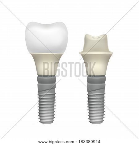 Vector plastic assembled tooth implant side view isolated on white background