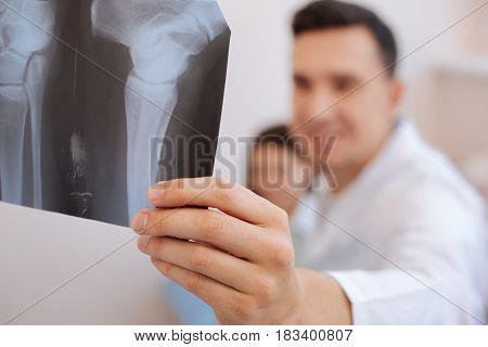 X ray photography. Selective photo of a radiograph being in hands of a nice professional experienced rheumatologist while examining it