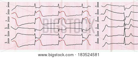 Emergency cardiology. ECG tape with sharpest period of macrofocal posterior diaphragmatic myocardial infarction