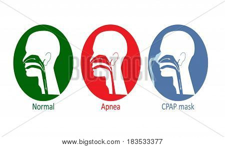 Vector illustration of normal breathing, with apnea disease and with CPAP mask.