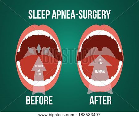 Vector illustration of surgery for obstructive sleep apnea, before and after result.