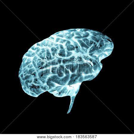 A Negative radiograph of a human brain