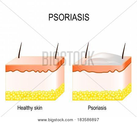 Normal skin and psoriasis. plaque psoriasis. vector