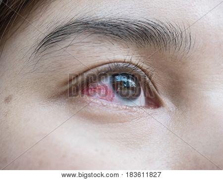 Closeup eye of asian woman with broken capillaries in the eye