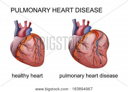 vector illustration of pulmonary heart disease. cardiology