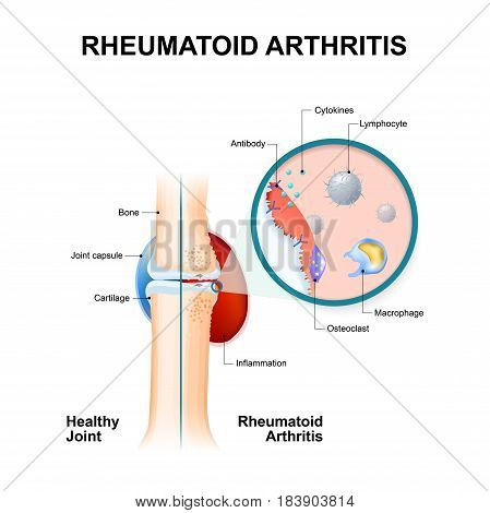 normal joint and one with rheumatoid arthritis. Rheumatoid Arthritis (RA) is an inflammatory type of arthritis that usually affects knees. the auto immune disease. The body's immune system mistakenly attacks healthy tissue.