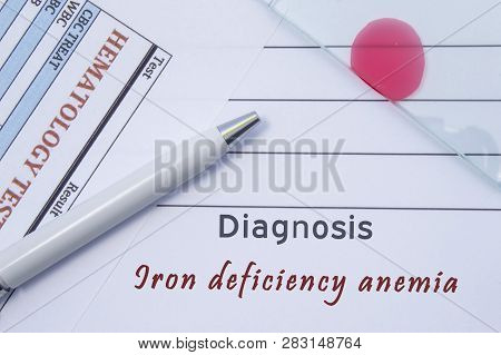 Diagnosis Iron deficiency anemia. Written by doctor hematological diagnosis Iron deficiency anemia in medical report, which are result of blood test and glass slide with blood smear for lab research poster