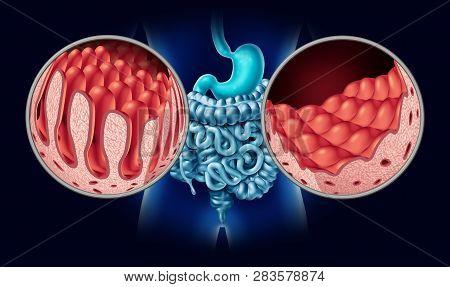 Celiac Or Coeliac Disease As An Intestine Anatomy Medical Concept With Normal Villi And Damaged Smal