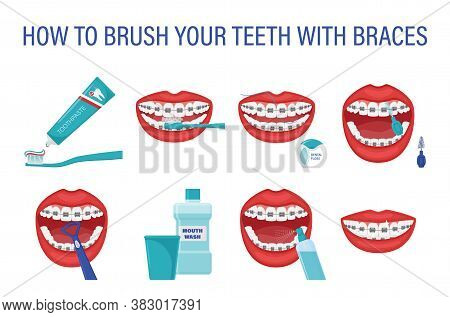 Infographic How To Brush Your Teeth With Braces. Step-by-step Instructions. Oral Hygiene. Healthy Li
