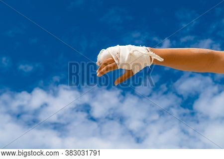Broken Hand In White Cast On Blue Background With Copy Space For Text. Finger Cast Trauma.