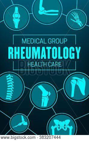 Rheumatology, Joints And Rheumatic Disorder Medical Health Care. Vector Human Skeleton Parts Hand, F