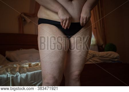 Hormonal Disorder, Hairy Body, Excess Weight In Women. Health Problems, Increased Hairiness Overweig