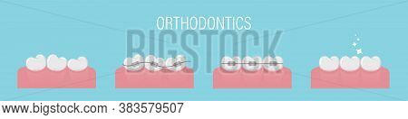 The Concept Of Teeth Alignment With Braces. Poster With Crooked Teeth, In Braces And Healthy Even. S