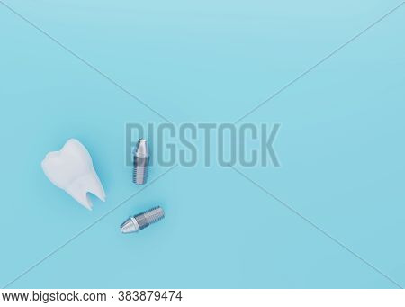 Tooth Crown And Dental Implants On Blue Background With Copy Space, Dental Implantation, Artificial