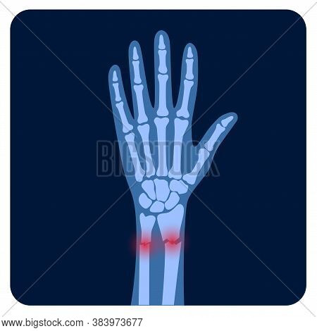 X Ray Of Arm Fracture With Red Pain Or Inflammation Points. Broken Hand With Inner Closed Radius Typ