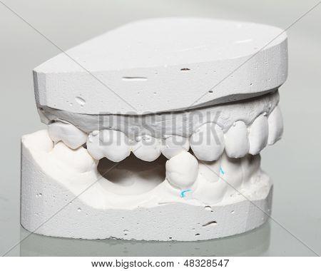 Dental casting gypsum model plaster cast stomatologic human jaws prothetic laboratory technical shots poster