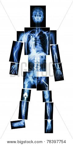 X-ray whole body and multiple fracture. He was operated and internal fixation by plate & screw poster