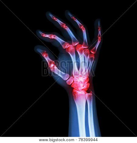 Human's Hand And Ok Symbol