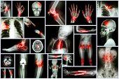 Collection X-ray multiple human's organ & orthopedic surgery & Multiple disease (Pulmonary tuberculosis , Gout , Rheumatoid arthritis , Spondylosis , Fracture bone , Stroke , Brain tumor , etc) poster