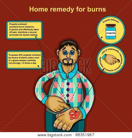 Home Remedy For Burns
