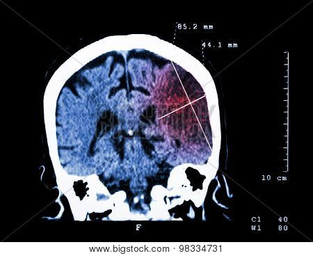Cerebral Infarction At Left Hemisphere ( Ischemic Stroke ) ( Ct-scan Of Brain )