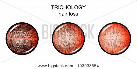 vector illustration of trichology. hair loss. dermatology
