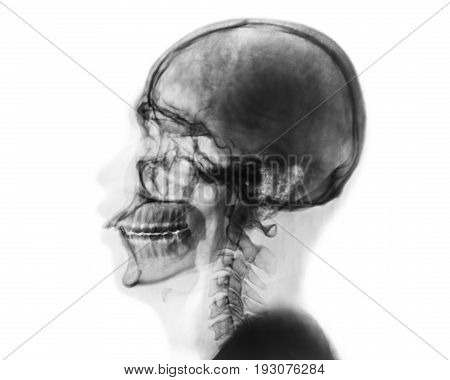 X-ray normal skull and cervical spine . Lateral view . Invert color style .