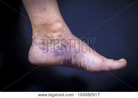 Human Foot With Varicose Veins