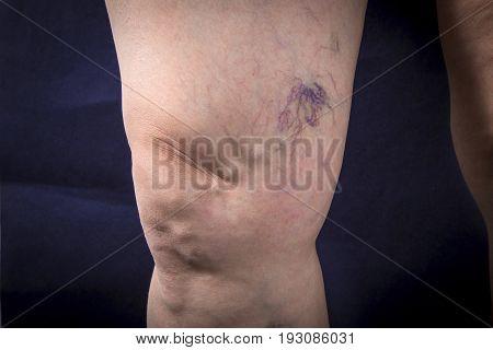 Human Leg With Varicose Veins