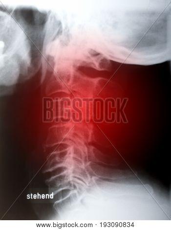 Human neck sidelong in x-ray. Shot in Studio