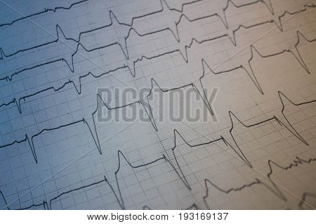 Electrocardiogram of a patient with pacemaker with colored shadows