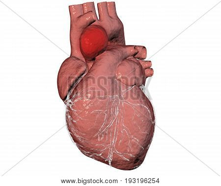Aneurism of ascending aorta. Heart with aortic aneurism isolated on white background, 3D illustration