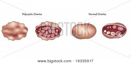 Polycystic ovary and normal ovary