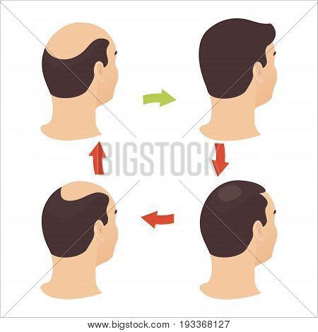 Hair loss stages set of four steps. Side view of a man losing hair before and after hair treatment and transplantation. Male alopecia pattern. Vector illustration.