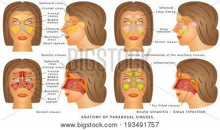 Nasal sinus. Human Anatomy - Sinus Diagram. Anatomy of the Nose. Nasal cavity bones. Anatomy of paranasal sinuses. Sinusitis - Antritis - It is the inflammation of the maxillary sinuses.