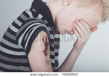 Weeping Male Child With Bloody Wounded Arm