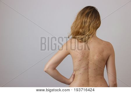 Young girl with acne with red spots on the back