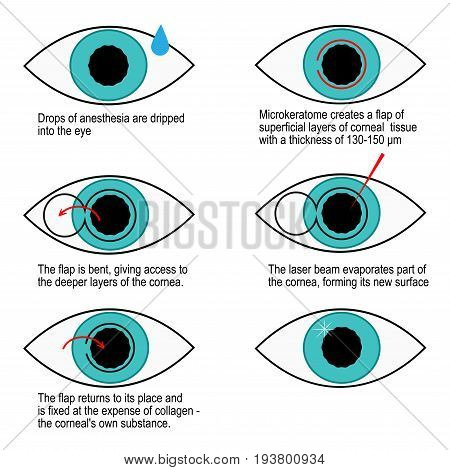 Procedure of laser correction of vision step by step. Infographics lasik
