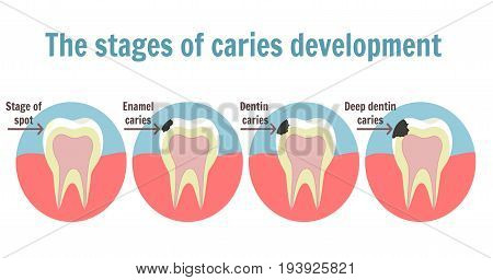 The Stages Of Caries Development. Dental Toothache Symbol