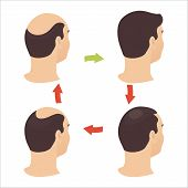 Hair loss stages set of four steps. Side view of a man losing hair before and after hair treatment and transplantation. Male alopecia pattern. Vector illustration. poster