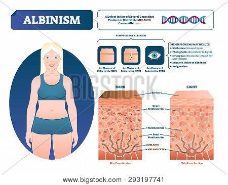 Albinism Vector Illustration. Labeled Medical Melanin Pigment Loss Scheme. Genetic Problem With Skin