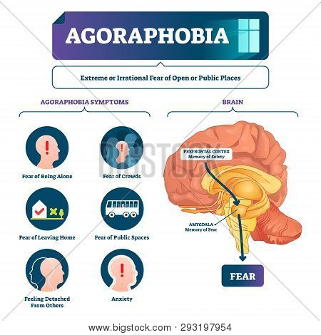 Agoraphobia Vector Illustration. Labeled Anatomical Fear Explanation Scheme. Emotional Mental Proces